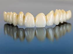 Cosmetic-Dentistry---Bridges-by-Cosmetic-Dental-of-Encino-(5)