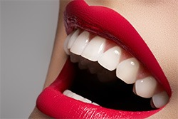 General-Dentistry-Crowns-by-Cosmetic-Dental-of-Encino-2