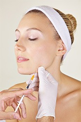 Injections-Belotero-Balance-by-Cosmetic-Dental-of-Encino-1