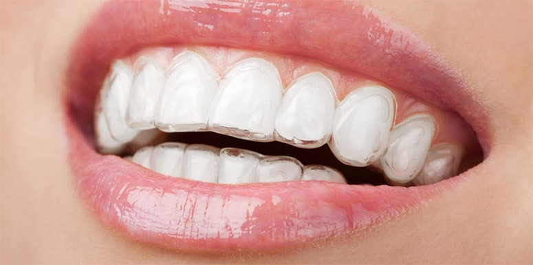 Invisalign Learn How Treatment Could Give You A Beautiful And