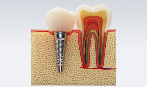 Root Canal Therapy Encino